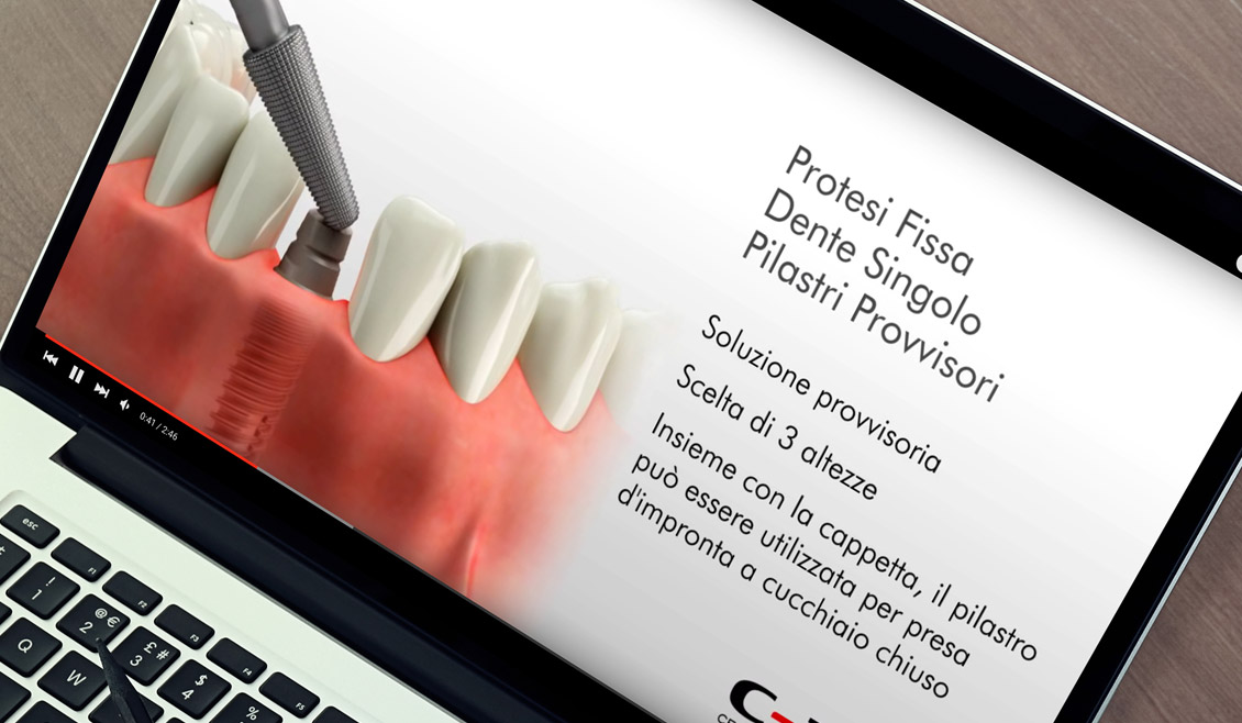 03 Video Prothetic C Tech Ricreativi Bologna